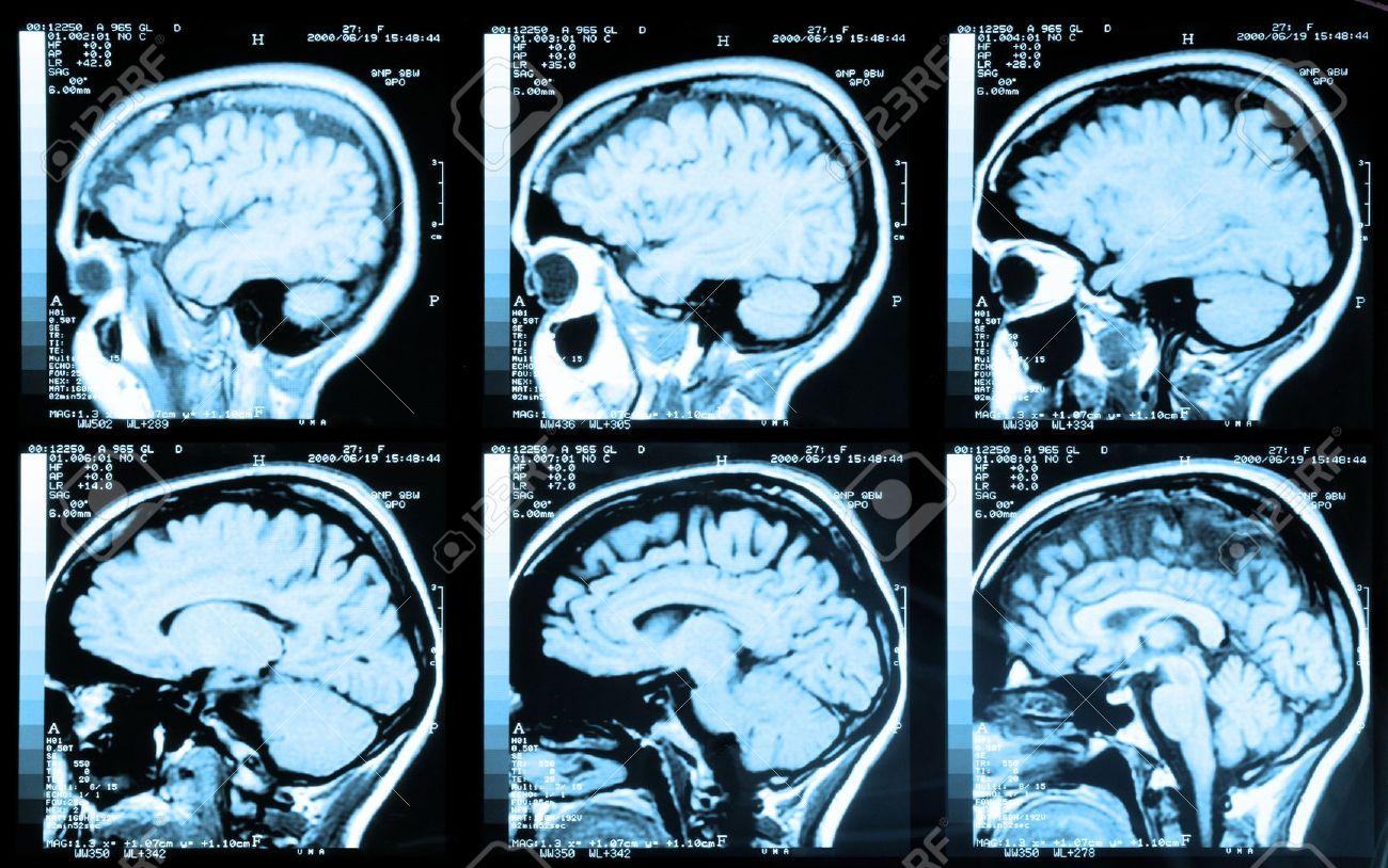 Imagen de Resonancia Magnética (IRM), técnica para tomar imágenes no invasivas.